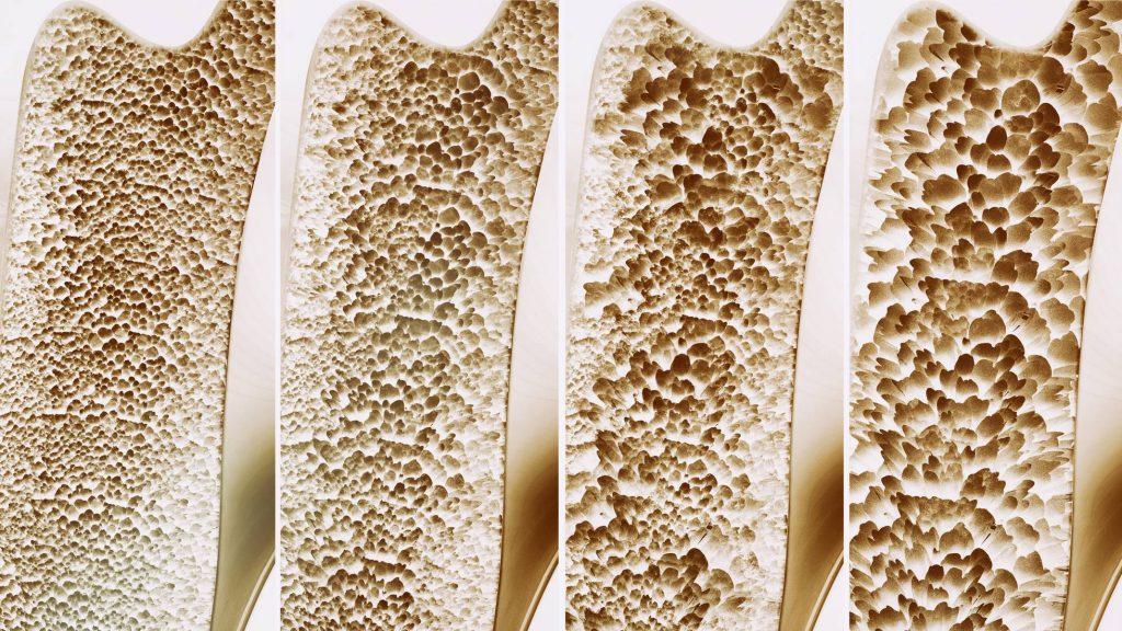 Cele patru faze ale osteoporozei